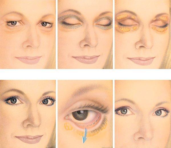 Eye Surgery: Surgery eyelids in Djerba